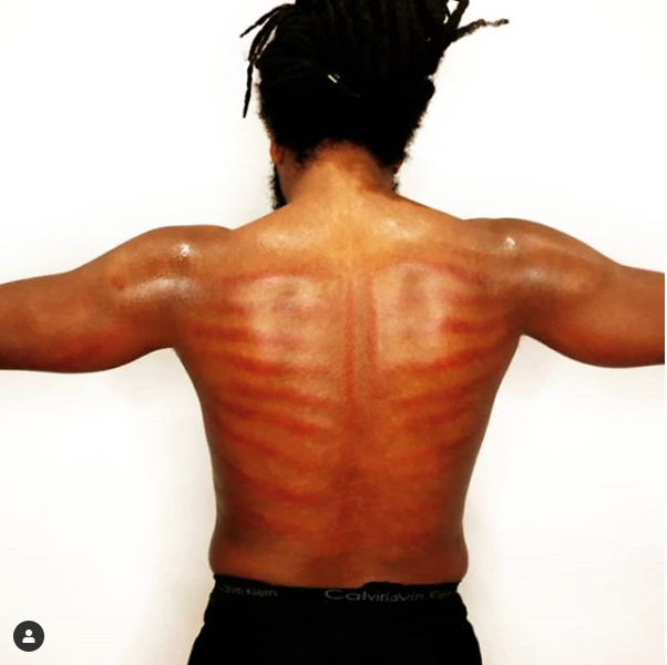 Gua Sha (Coining)  or Cupping