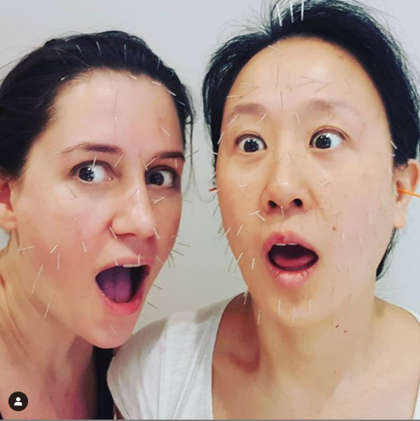Two people- acupuncture facial