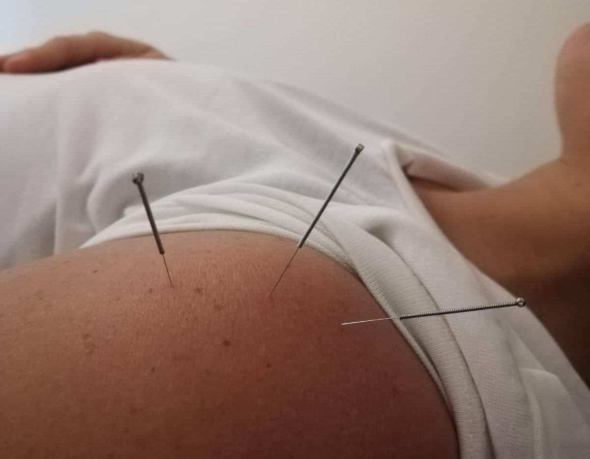 דיקור לכאב בכתף