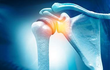 Entstehung der Frozen Shoulder - Therapiemöglichkeiten