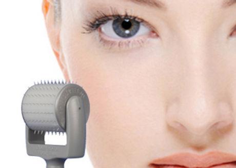 Dermaroller-Facial-Treatment1_edited.jpg