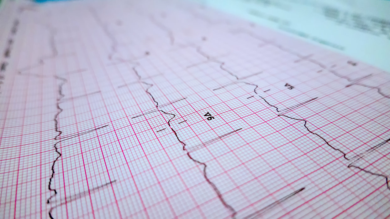 heart-rate-radiology-graph-data-sheet-4D