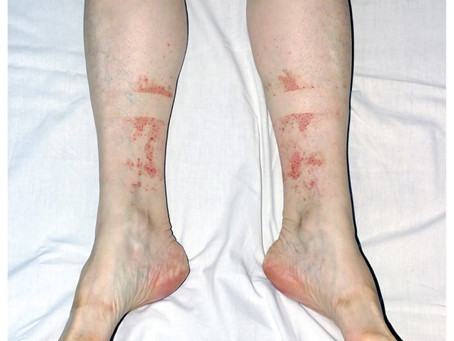 Hiker's Rash - Exercise Induced Vasculitis