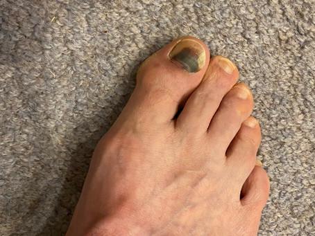 Hiker's Toe