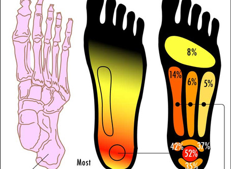 4 steps to stave off plantar fasciitis