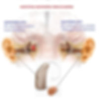 Ακουστικά Ετερόπλευρης Δρομολόγησης Σημάτων (CROS & BiCROS)