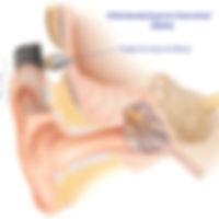 Οστεοαναρτώμενο Ακουστικό Βαρηκοϊας (Baha)