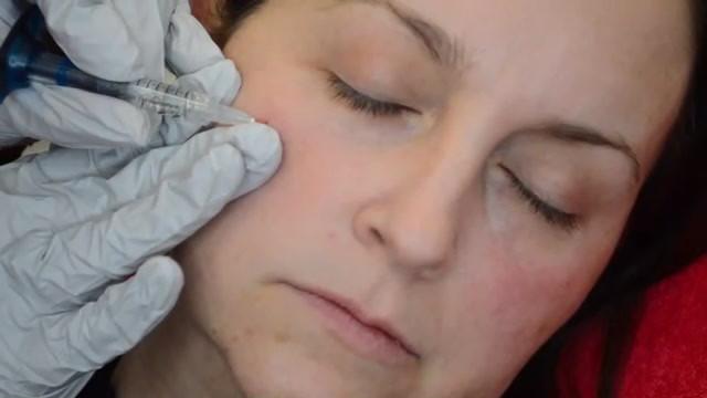 Dermal-Health-Tear trough two low res_Tr