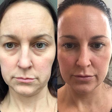Dermal-Health-4 week before and after.JP