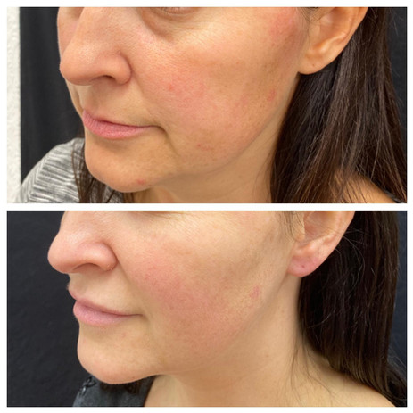 Dermal-Health-Thread lifting Before and