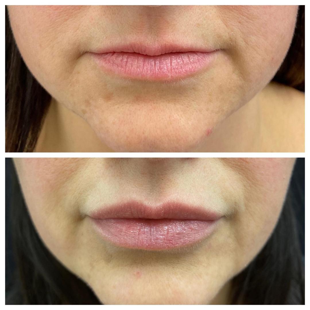 Dermal-Health-MASTER before and after LI