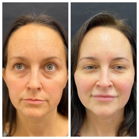 Dermal-Health-Final touch ups for Botox