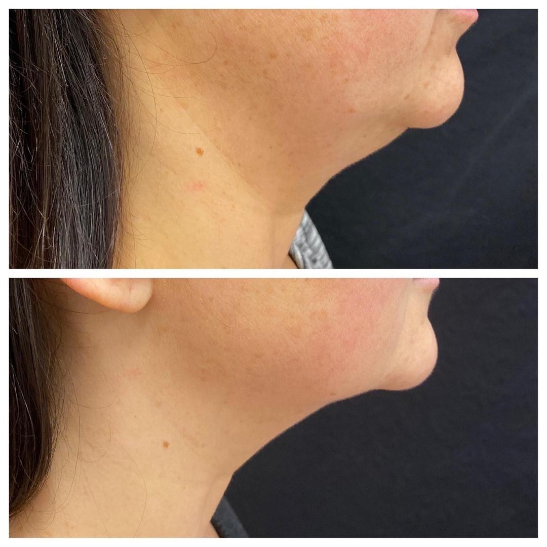 Dermal-Health-Before-After.JPG