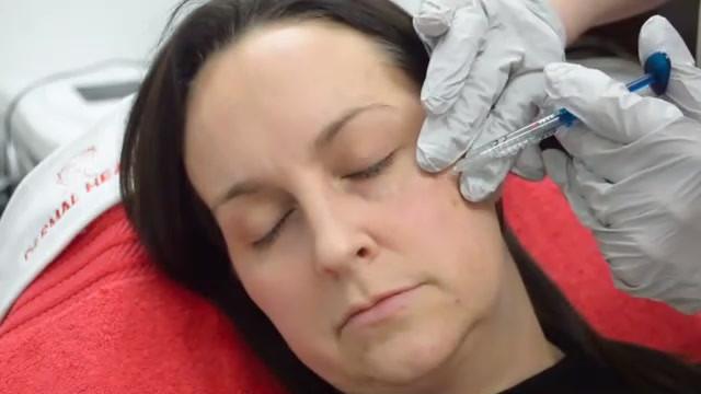 Dermal-Health-Tear trough one low res_Tr