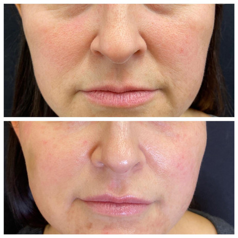 Dermal-Health-Before and After.jpg