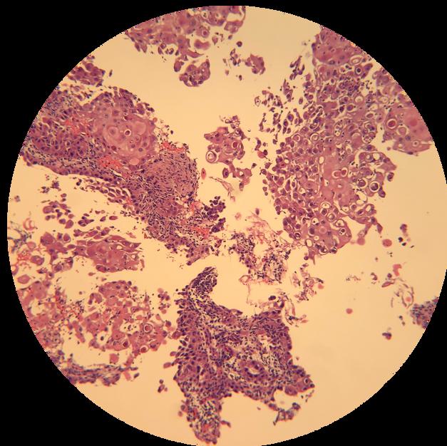 Lymph Node: Cell Block