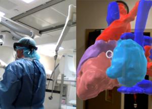Model of patient heart viewed through HoloLens in procedure room.