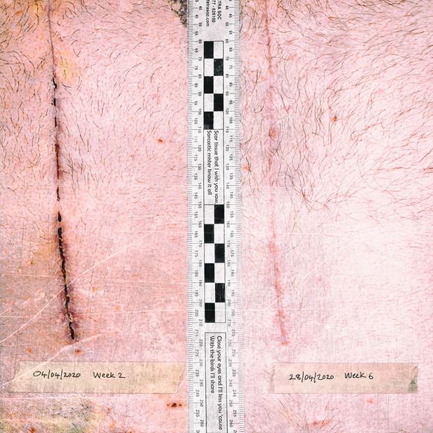 4 April 2020 Scar Tissue - Simon Larson