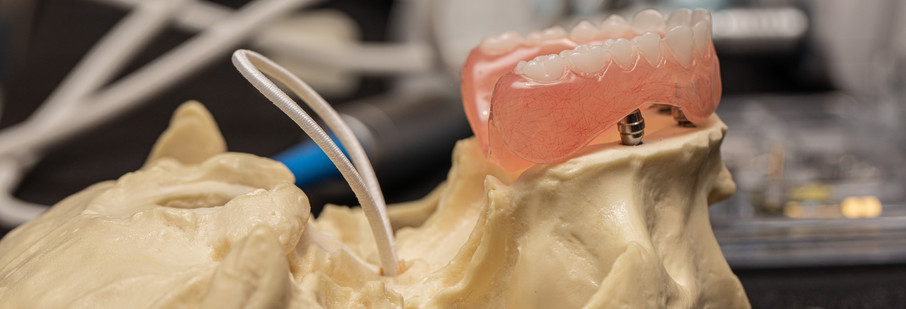 implant compare - peyman course-13.jpg