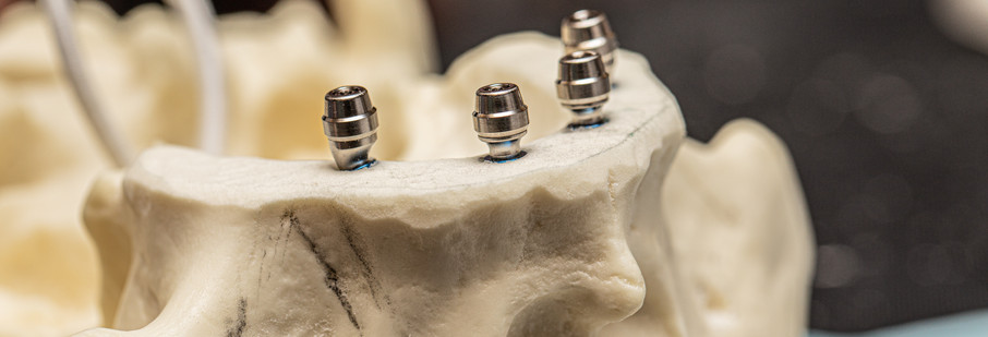 implant compare - peyman course-15.jpg