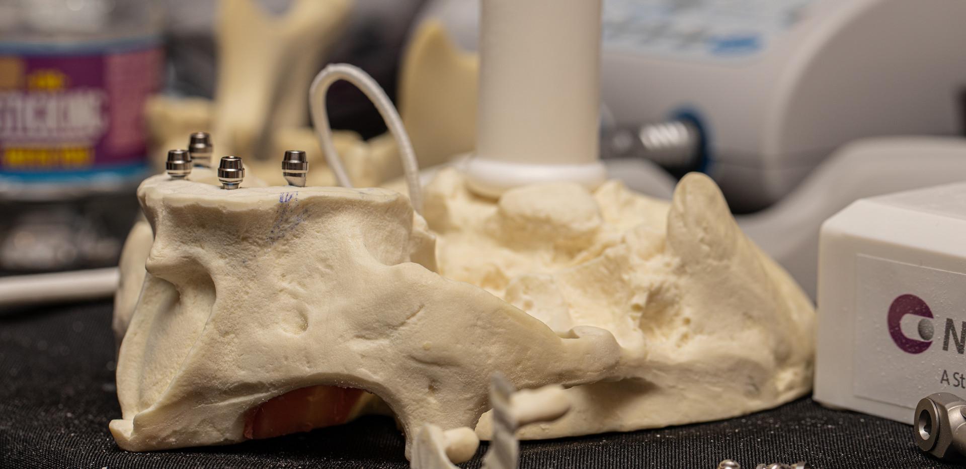 implant compare - peyman course-17.jpg