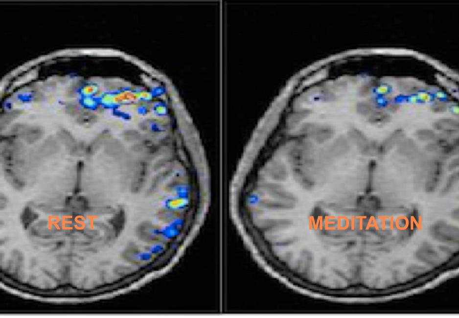 Brain state in Rest versus Meditation