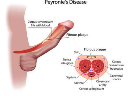 Understanding The Causes of Peyronie's Disease: Let's fight the curve