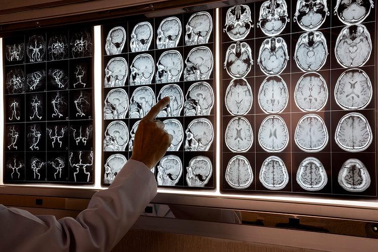 MRI viewing.jpg