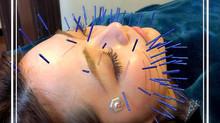美容鍼灸なら住之江区のふじい鍼灸整骨院(予約状況)
