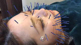 ふじい式美肌小顔美容鍼なら住之江区新北島にある(社)日本美容鍼灸協会認定院のふじい鍼灸整骨院へ【美容鍼にかける想い】