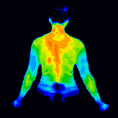 Have You had an Annual Thermogram?