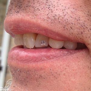 18K WG 13 Tooth Gem