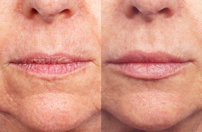 aging-lips-rejuvenated-dermal-filler-720