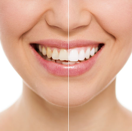 Before and after teeth bleaching or whit