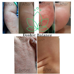 Baby skin treatment.jpg