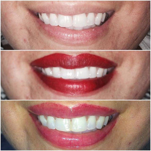 #permanentmakeup #lips #permanentlips