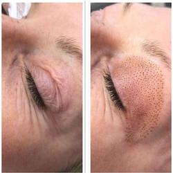 loose skin on eyelid