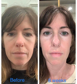 puffy eyebags treatment by plasma