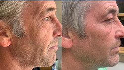 crows feet and mini face lift
