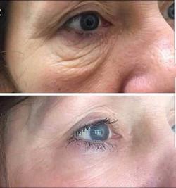 eyebags and eyelids treatment