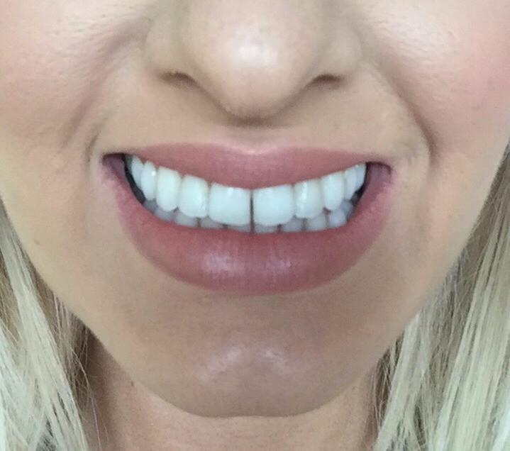 My Teeth before Refinements
