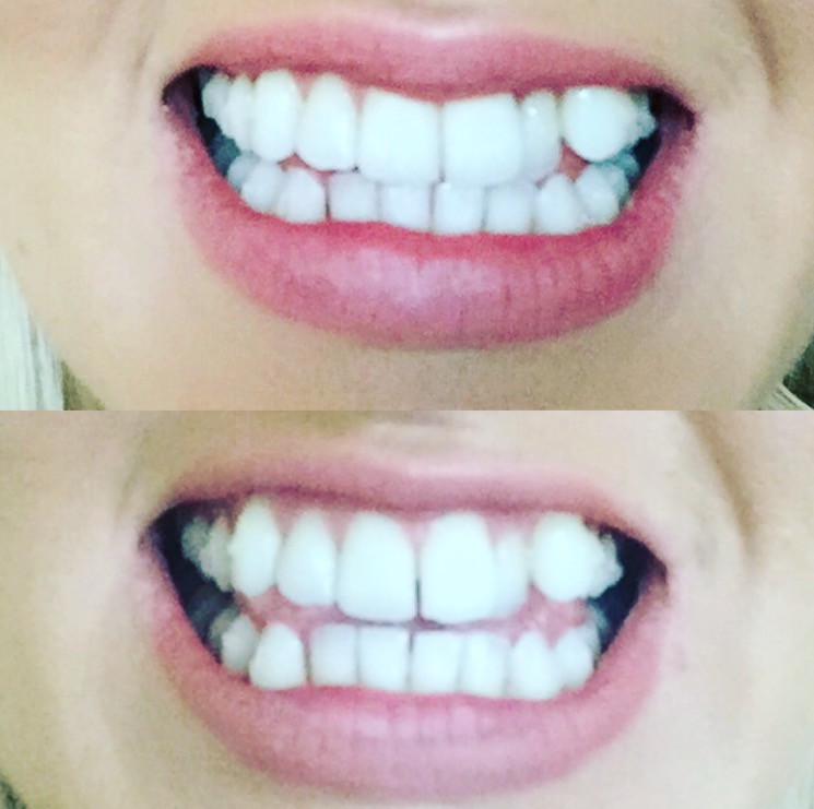 Day 1 of Invisalign Vs Day 43