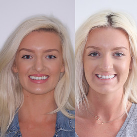 Invisalign Update Part 3; The Results