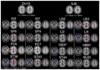 Brain on Acupuncture