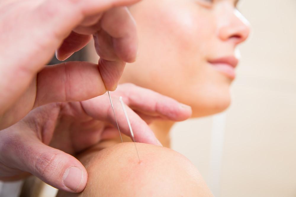 Acupuncture closeup.jpg