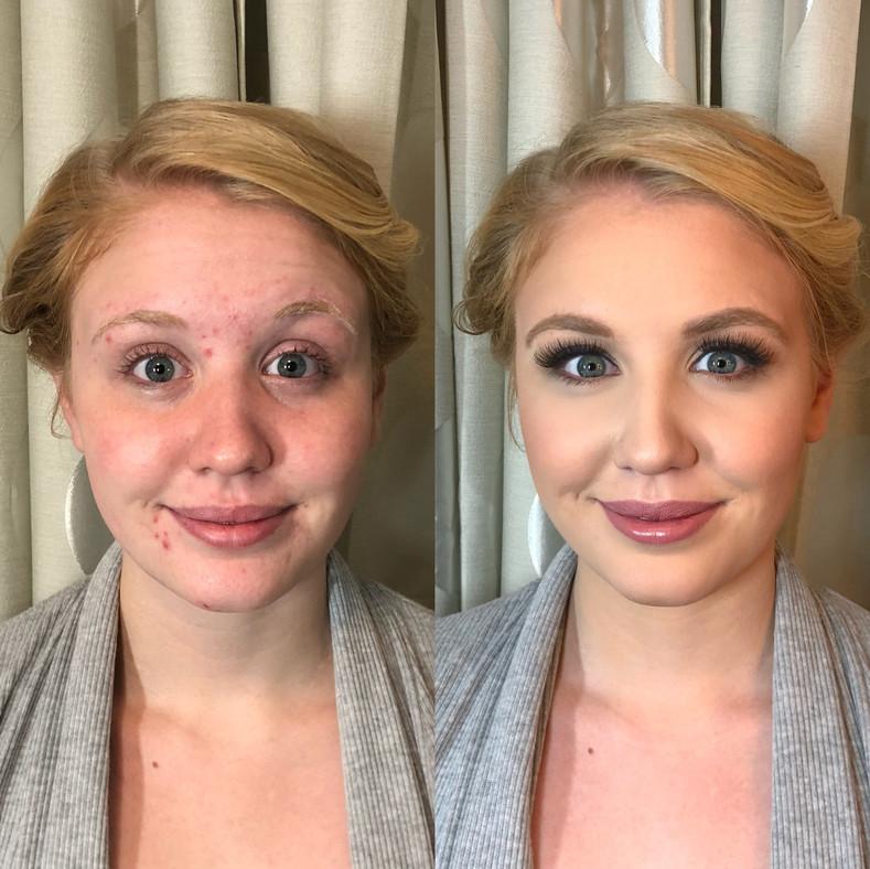 acne coverage