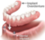 types-of-full-dentures.jpg