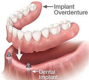 types-of-full-dentures.jpg