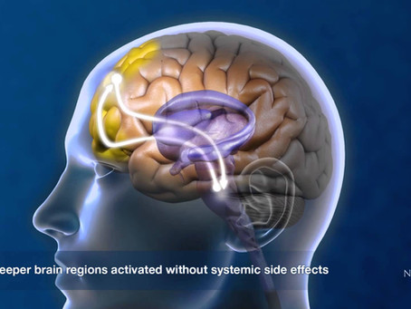 Transcranial Magnetic Stimulation: What is it?