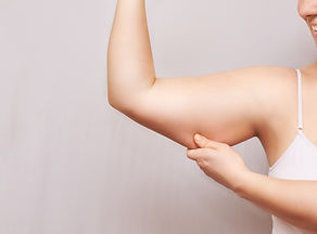 Young woman pinch fat arm. Self hand pinching body. Fenale person showing overweight trice